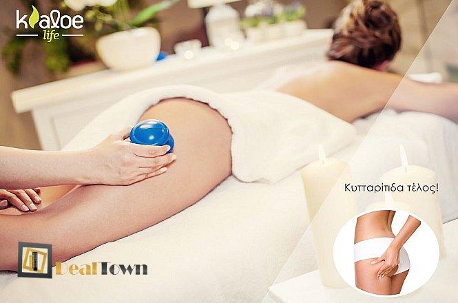 180€ από 660€ για Ένα Ολοκληρωμένο Πρόγραμμα με Βεντούζες Σώματος 6 Συνεδριών για Οριστική Απομάκρυνση της Κυτταρίτιδας + Δώρο 2 Relaxing Massage Δώρο, στο Kaloe Life στο Κολωνάκι! εικόνα