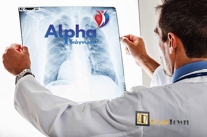 8€ από 15€ για μια (1) Ακτινογραφία Θώρακος, από το νέο διαγνωστικό κέντρο Alpha Διάγνωση στη Δάφνη, ακριβώς στο σταθμό του Μετρό. εικόνα