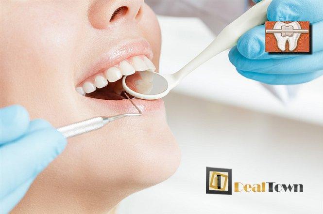 25€ για ένα Σφράγισμα Δοντιού, στην πολυτελή Οδοντιατρική Θεραπεία Παλαιού Φαλήρου. Εξοπλισμένο με ιατρικά μηχανήματα τελευταίας τεχνολογίας στην οποία εφαρμόζεται όλο το εύρος θεραπειών. Έκπτωση 50%!! εικόνα