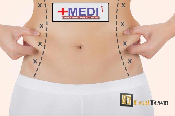 49€ για τέσσερις (4) Συνεδρίες Μεσοθεραπείας Λιποδιάλυσης και Σύσφιξης Κοιλιάς. Η θεραπεία είναι προσφορά του πρότυπου κέντρα Κοσμητικής Ιατρικής Medisystem σε Άγιο Δημήτριο-Κηφισιά και εφαρμόζεται από έμπειρο και αναγνωρισμένο ιατρικό προσωπικό. Αυτό που επιτυγχάνουμε με τη μεσοθεραπεία είναι με ενέσεις σε αυτό το στρώμα της επιδερμίδας να αυξήσουμε τη λιπόλυση, καταστρέφοντας τα περίσσια λιποκύτταρα, και να βελτιώσουμε τη μικροκυκλοφορία για να πετύχουμε μια ωραία εμφάνιση!! εικόνα