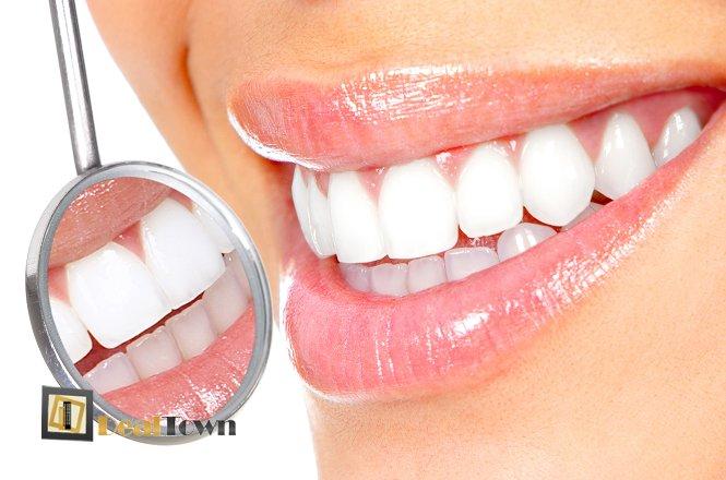 55€ από 200€ για λεύκανση δοντιών με χρήση λάμπας LED, καθαρισμό δοντιών και πλήρη στοματικό έλεγχο από Χειρουργό Οδοντίατρο στην Νέα Ιωνία. Εξοπλισμένο οδοντιατρείο με ιατρικά μηχανήματα τελευταίας τεχνολογίας!! εικόνα