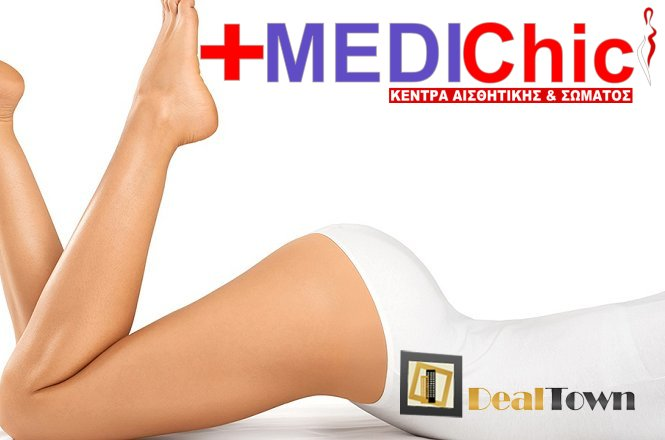 35€ από 400€ για ένα 6μήνο πρόγραμμα αποτρίχωσης, με IPL νέας γενιάς SHR 950nm, στην περιοχή του σώματος που επιθυμείτε! Η προσφορά αφορά όλους τους τύπους δέρματος! Προσφορά από το ΟΛΟΚΑΙΝΟΥΡΓΙΟ Medichic Συντάγματος!! εικόνα
