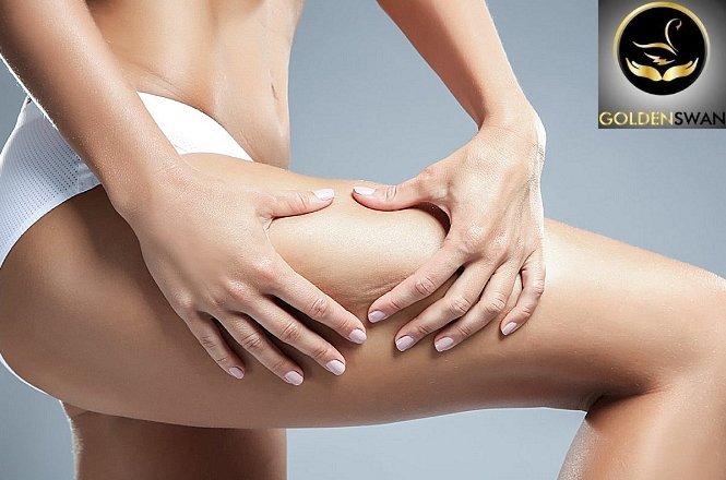 45€ για τρείς συνεδρίες μασάζ αδυνατίσματος διάρκειας 45 λεπτών η κάθε μια στο Golden Swan Massage που βρίσκεται στην Καλλιθέα. Απώλεια πόντων τοπικά, σίγουρα και θεαματικά, με ταυτόχρονη αίσθηση ανακούφισης και ευφορίας!! εικόνα