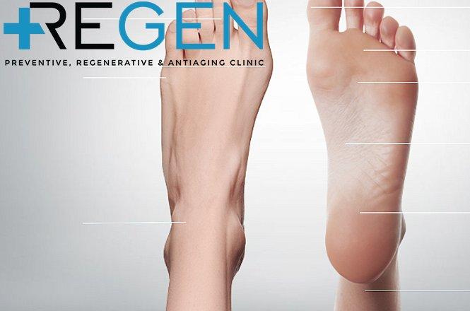 8€ από 55€ για Πελματογράφημα από ορθοπεδικό ιατρό στα πολυιατρεία REGEN Clinic (Χολαργό & Σύνταγμα). Το πελµατογράφηµα ή κινητική ανάλυση βάδισης (στατική και δυναµική) είναι µια διαγνωστική ηλεκτρονική συσκευή που λειτουργεί χωρίς ακτινοβολία ή ραδιενέργεια. εικόνα