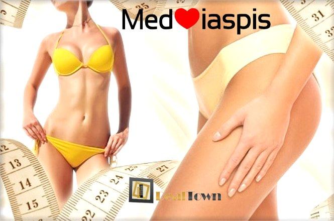 75€ από 160€ για 3 συνεδρίες αδυνατίσματος που περιλαμβάνουν θεραπεία Cryolipolisis, θεραπεία RF και θεραπεία Pressotherapy, για άμεση απώλεια κιλών και σύσφιξη, στο εξειδικευμένο κέντρο Mediaspis στο Περιστέρι. εικόνα