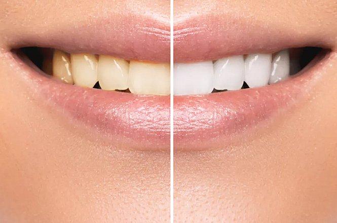 95€ λεύκανση δοντιών με διαφανείς νάρθηκες λεύκανσης σε οδοντιατρική κλινική στο Παγκράτι (1 λεπτό από τη στάση Μετρό Ευαγγελισμός έξοδος Ριζάρη). εικόνα