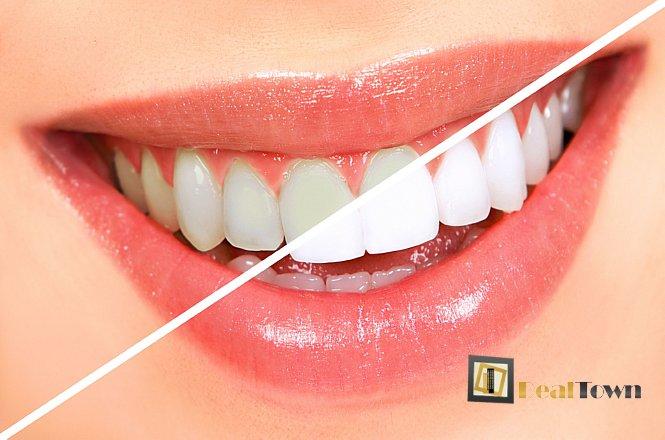 79€ για συνεδρία λεύκανσης δοντιών με χρήση λάμπας ψυχρού φωτός LED & Πλήρης Στοματικός Έλεγχος & Καθαρισμός Δοντιών με υπερήχους, αφαίρεση πέτρας και χρωστικών, στίλβωση και σοδοβολή στην Οδοντιατρική Θεραπεία Παλαιού Φαλήρου. εικόνα