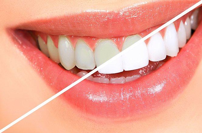 45€ Λεύκανση Δοντιών με χρήση λάμπας LED. Λευκά δόντια με εξαιρετικά & σίγουρα αποτελέσματα, από Οδοντίατρο στην Νέα Ιωνία. εικόνα